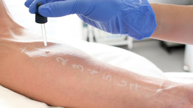 Porquê o Teste de Alergia ou Contato é tão Importante?